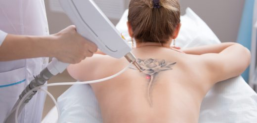 What to Know about Laser Tattoo Removal