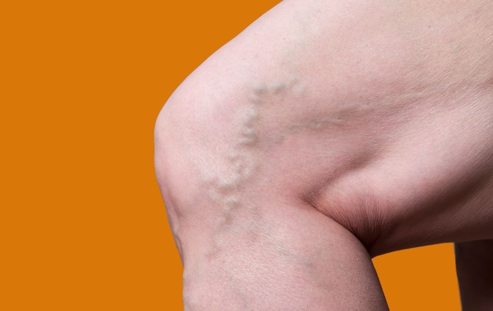 Few Important Tips to Keep Your Veins Strong and Healthy