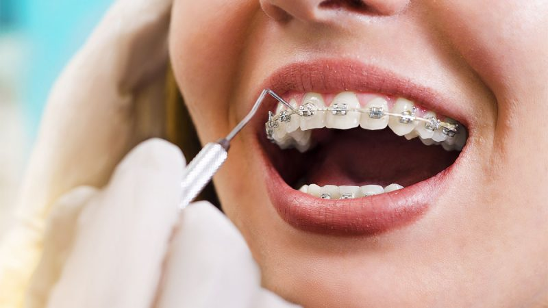 Veneers or Braces – Which One Gives the Most Effective Results