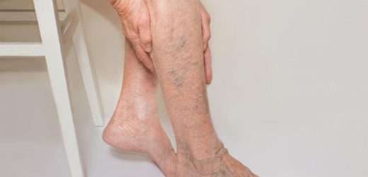 Varicose Veins 101: Basics, Treatment Options And More!