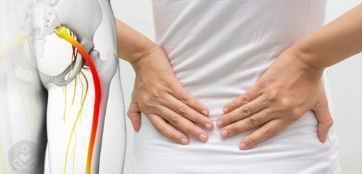 Get the Best Sciatica Pain Treatment at Specialist Pain