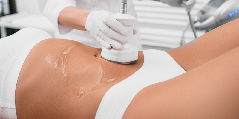 Various Laser Treatments Available to Remove Unwanted Fat