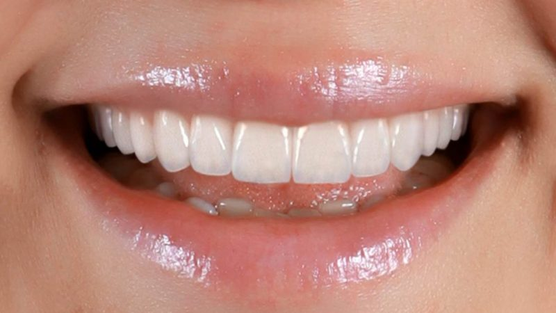 Informative Things One Should Know About Full Mouth Reconstruction