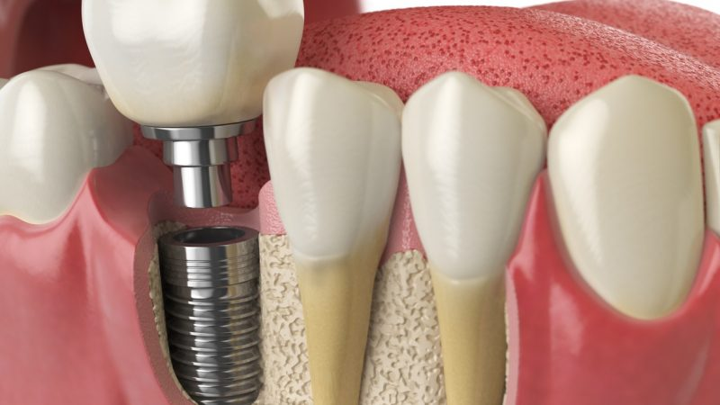 Cosmetic Dentistry: Should you Get Dental Implants?